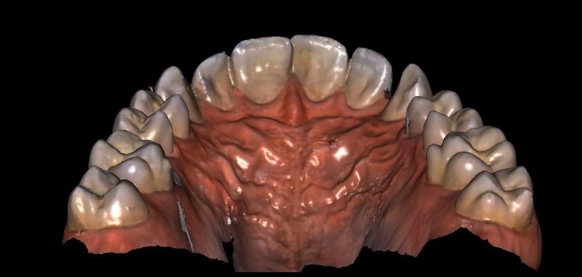 imagem computadorizada de uma arcada dentária exemplificando a odontologia digital