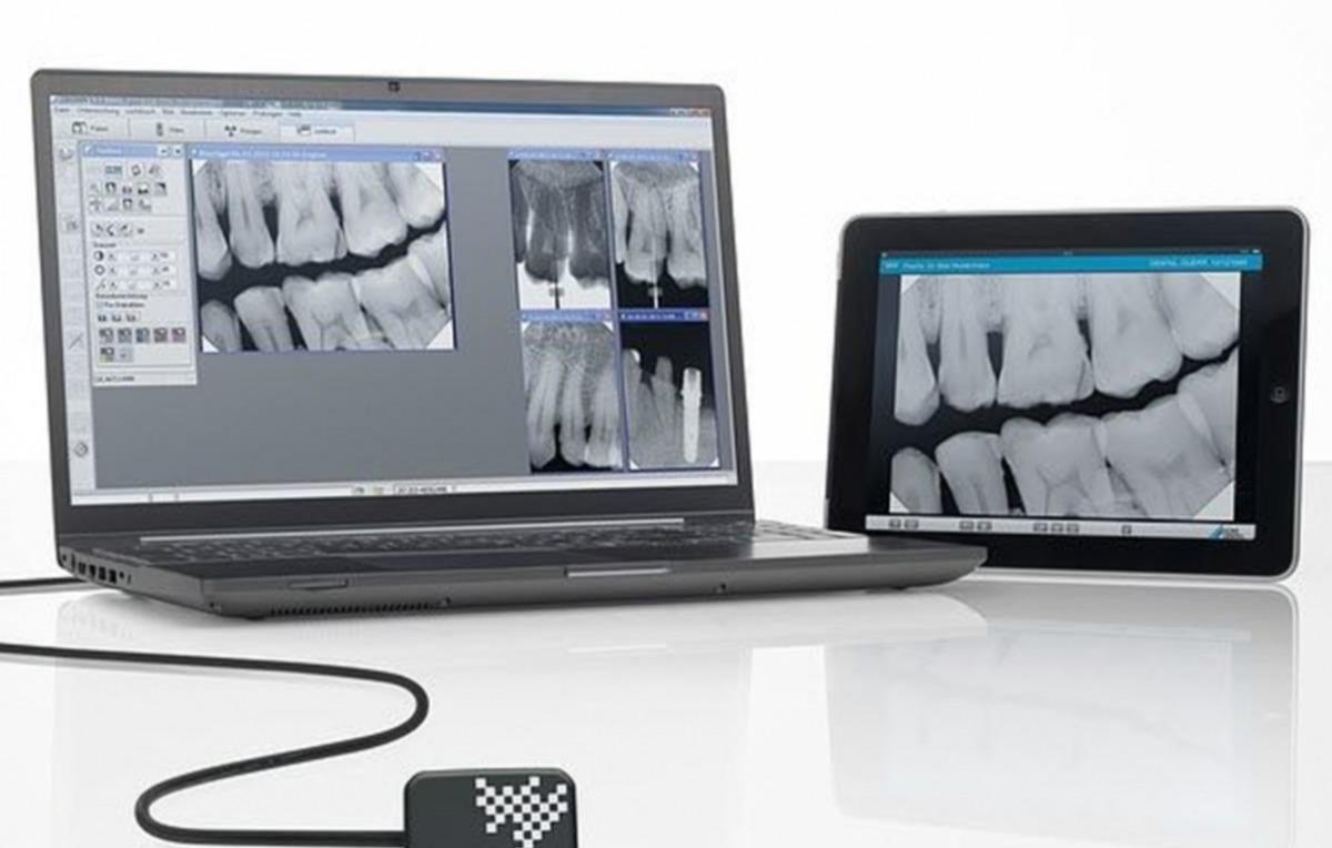 notebook e tablet mostrando exames de uma clínica de radiologia digital