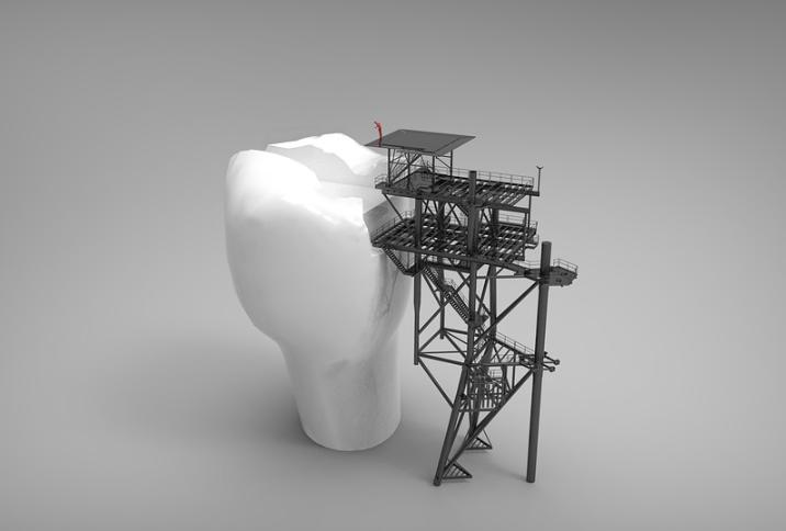Dente gigante sendo construído por uma plataforma - abrir franquia odontológica