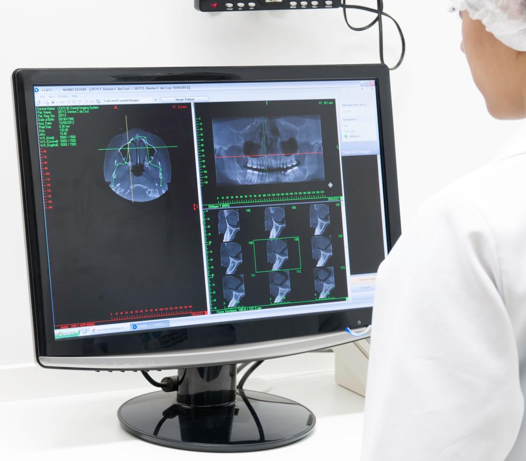 analisando imagens radiograficas