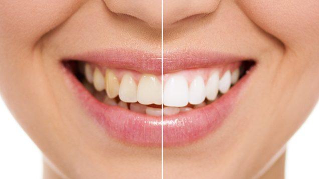 Sorriso dividido ao meio com a metade esquerda sem tratamento e a metade direita já tratada