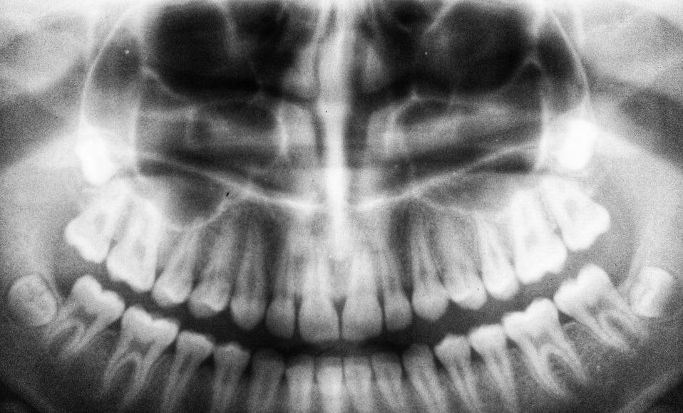 close de um raio-X de uma arcada dentária