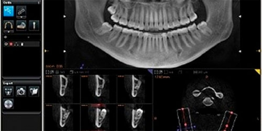 exame panorâmico de tomografia computadorizada de uma arcada dentária