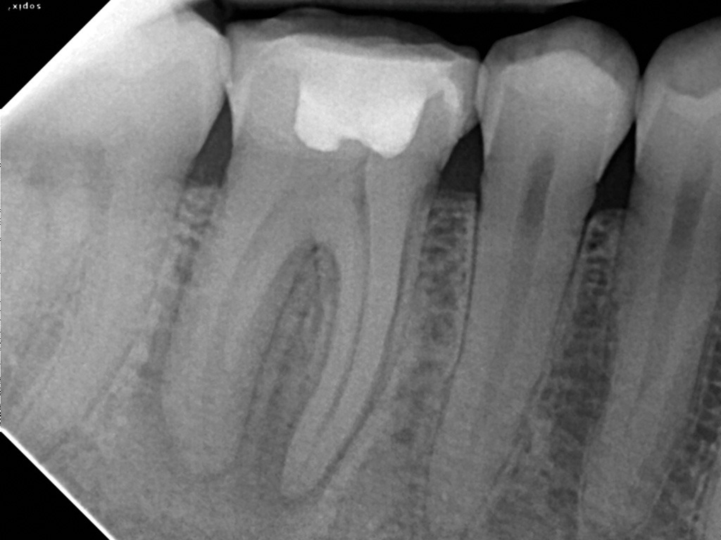 radiografia periapical