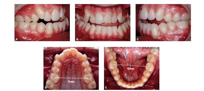 expansão maxilar com apaerlho