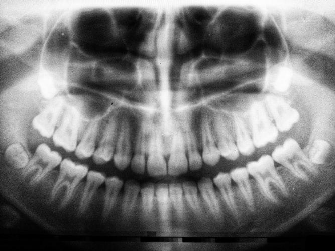 diferença enrte tomografia e radiografia