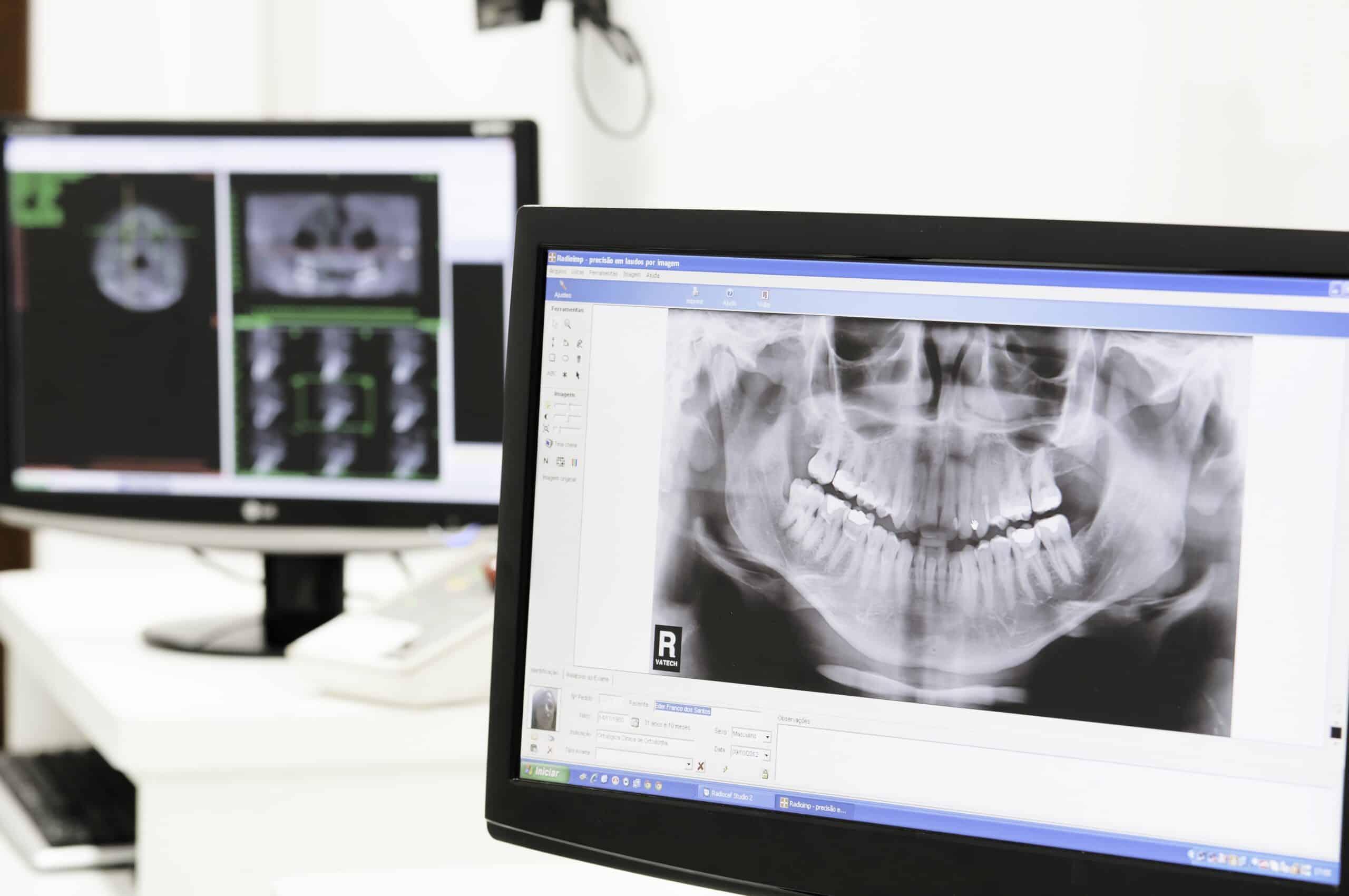 Exames odontológicos digitais