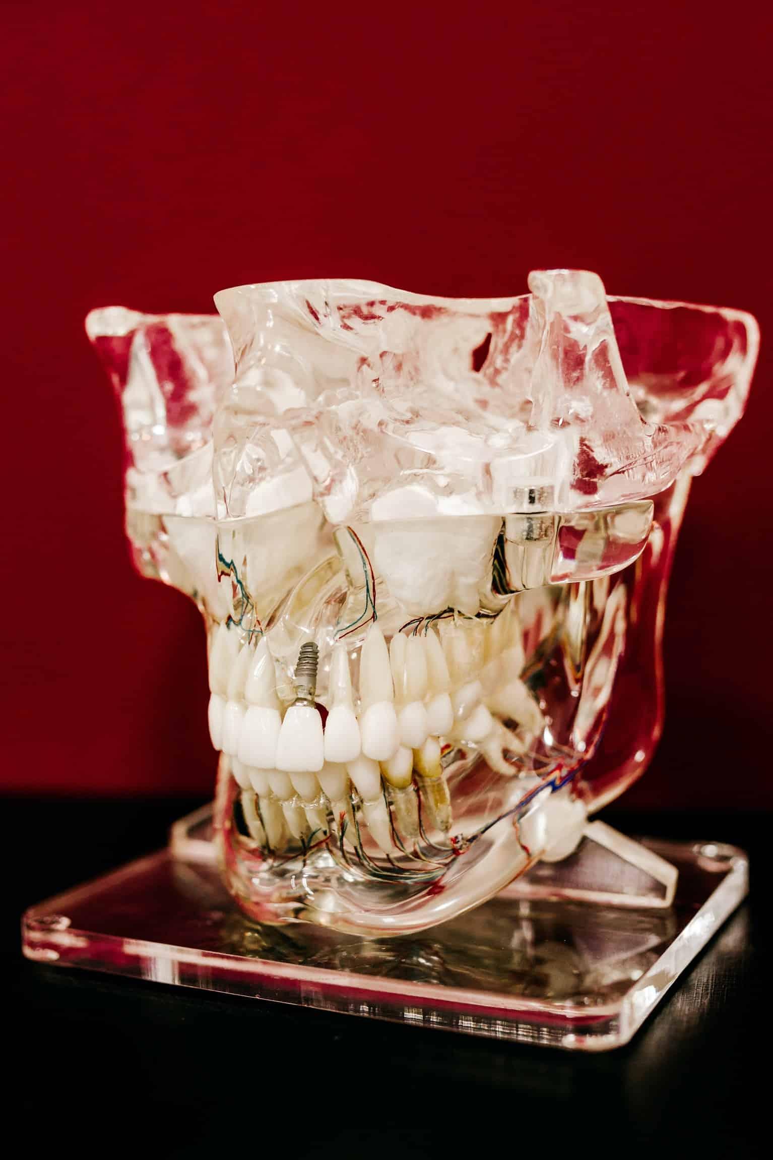 modelos prototipados na Odontologia
