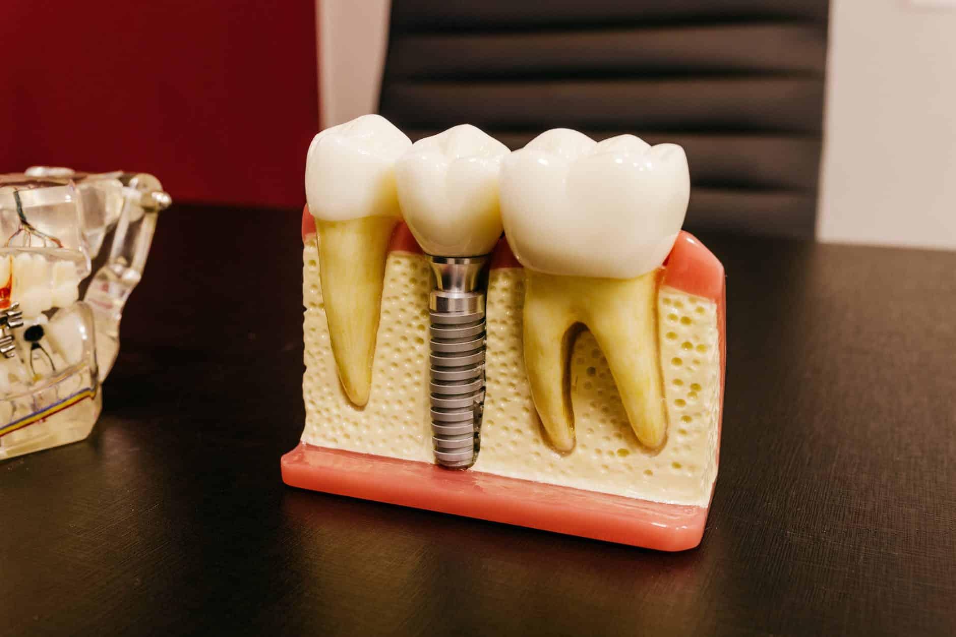 cimento odontológico