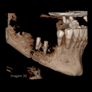 Osteomielite Mandibular