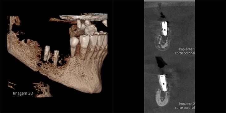 tomografia-pos-implante-Osteomielite