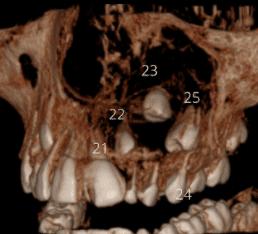 Tumor Odontogênico Adenomatoide