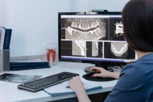 giroversão dentária