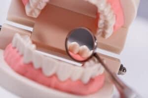 biomodelos-na-odontologia